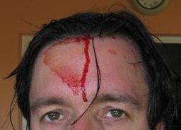 Garage door induced pain